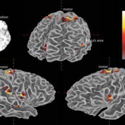 Musica e cervello. Guarda come le note eccitano i neuroni